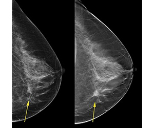 When it's time for a mammogram, should you ask for 3D?
